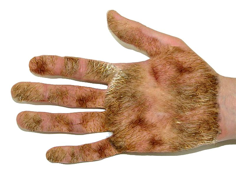 hairy-palms