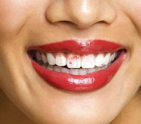 1.-Lipstick-on-teeth-451x398