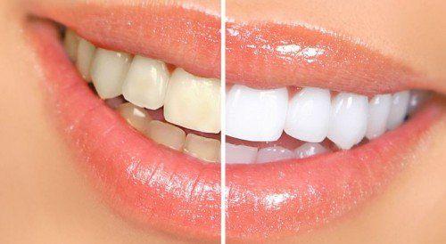 Como Clarear Os Dentes Em Casa Sem Dramas