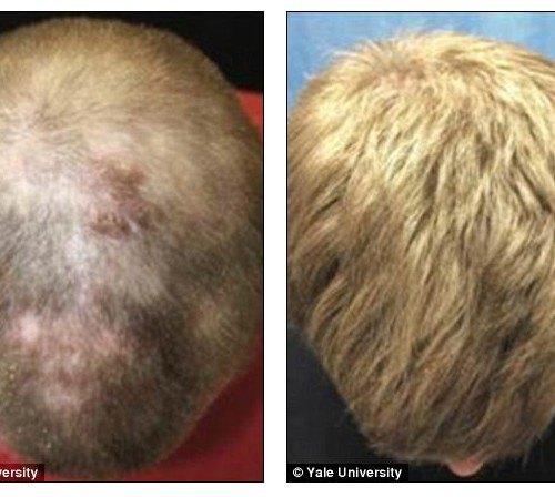 Arthritis-Drug-Used-to-Treat-Hair-Loss-from-Alopecia-Universalis