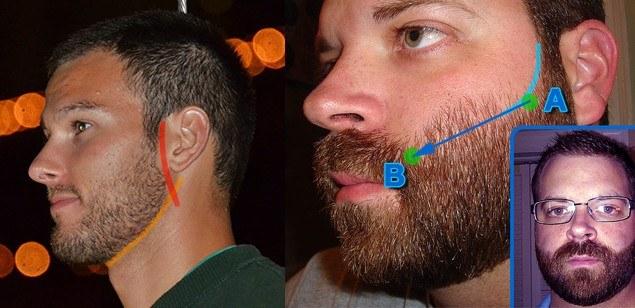 barba linha