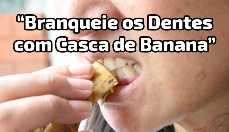 banana-peelscapa