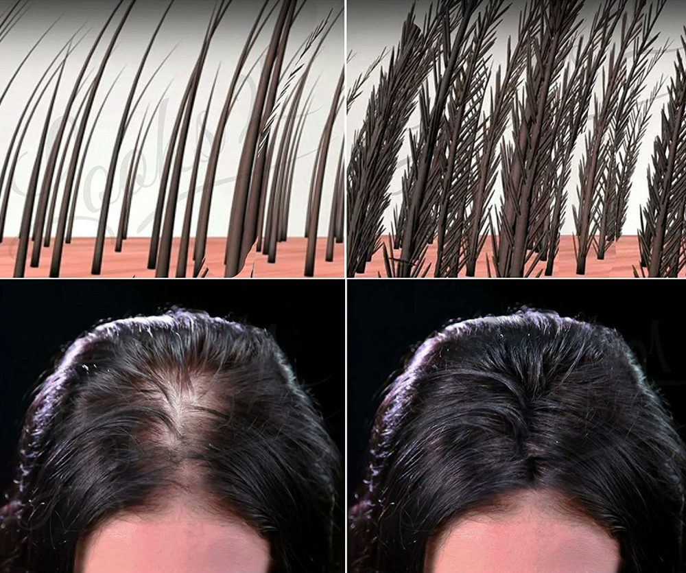 Amazon, http://www.amazon.in/Looks21-Hair-Loss-Concealer-Black/dp/B019AEXEB8